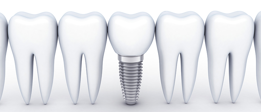 Bone Grafting For Dental Implants: The Essential Information