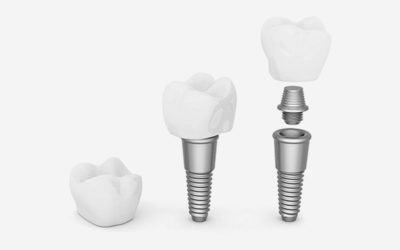 Dental Implant Cost in Thailand – Is The Cost Saving Worth It?